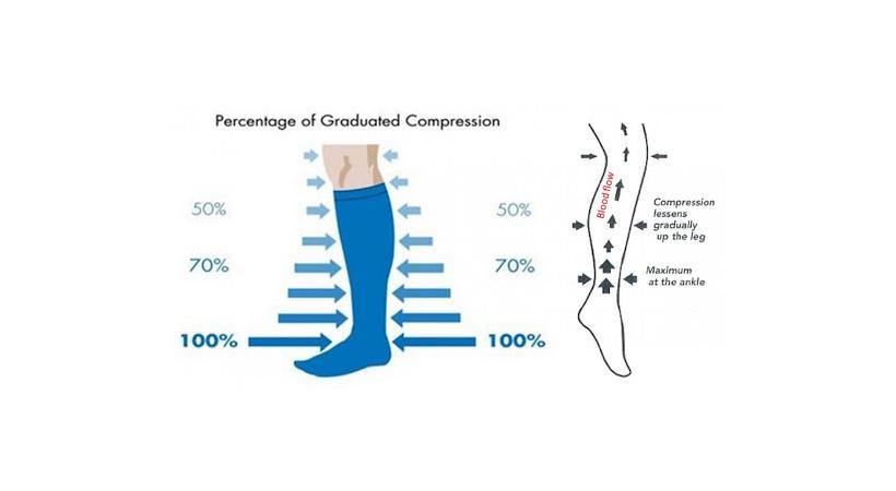 graduated compression levels when wear compression legwear