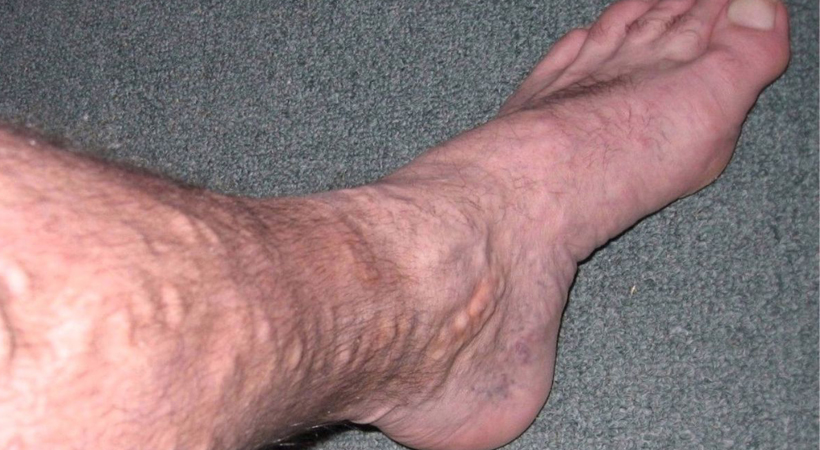I don't want to have – UGLY purple bulging blood vessels on my ankles, like my mother has!