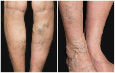 What Can I Do at HOME – to Relieve My Varicose Veins – During COVID-19 Quarantine?