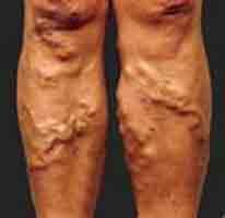 Bulging Blood Vessels is Ugly Varicose Veins